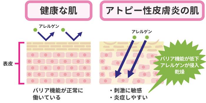 アトピー性皮膚炎の肌荒れメカニズム